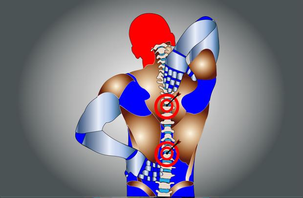 I punti più colpiti della schiena da una corretta postura